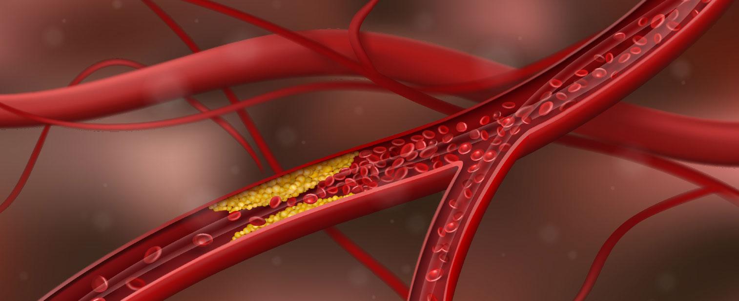 Parliamo di colesterolo